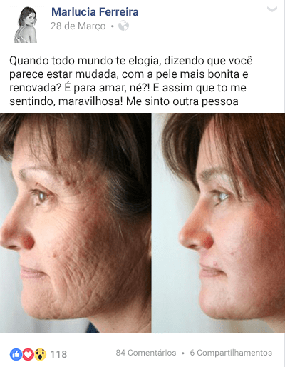 Relatos: Comprar Beauty Skin Funciona